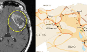 ISIS and brain tumors look similar and share many characteristics