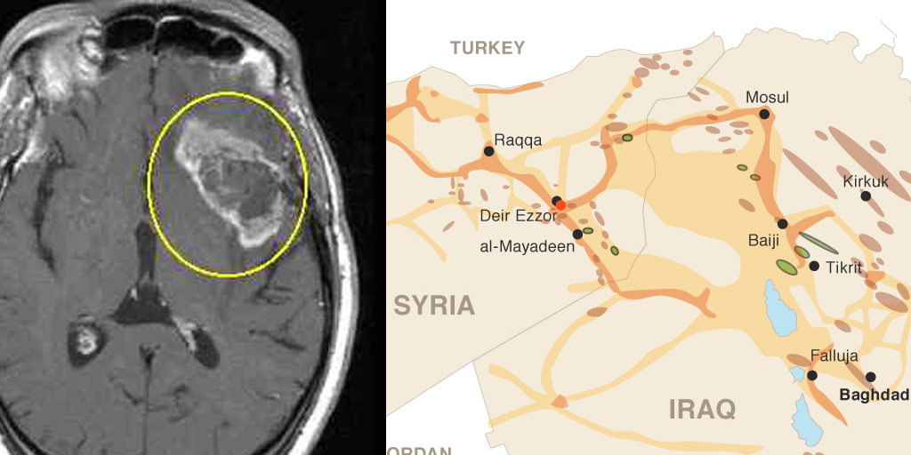 ISIS and brain tumors look similar and share many characteristics